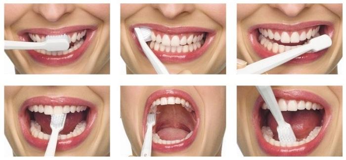 Резултат слика за Pravilno pranje zuba i oralna higijena kod trudnica i dece
